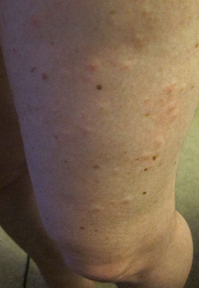 Photos Of Poison Ivy Rashes Poison Ivy Cures Help And