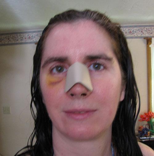 Removing The Nose Cast Deviated Septum Surgery Tips Photos
